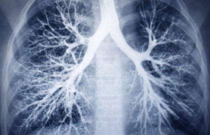 """כל מה שרצית לדעת על COPD ולא העזת לשאול, עם ד""""ר בני פוקס"""